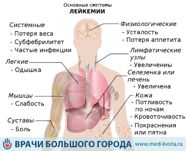 Симптоматика рака крови