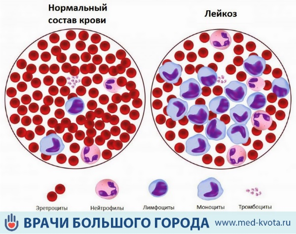 Первые признаки рака крови у женщин