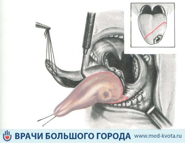 Хирургическое лечение опухоли языка