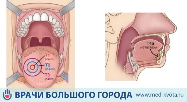 Стадии развития опухоли языка