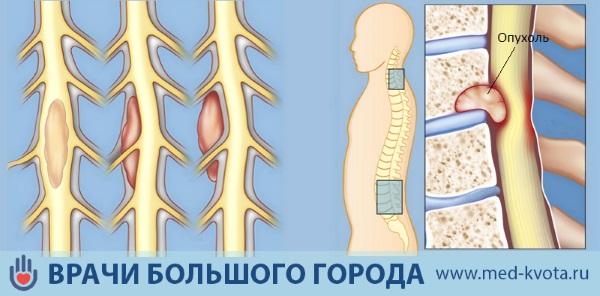 Рак спины симптомы и признаки