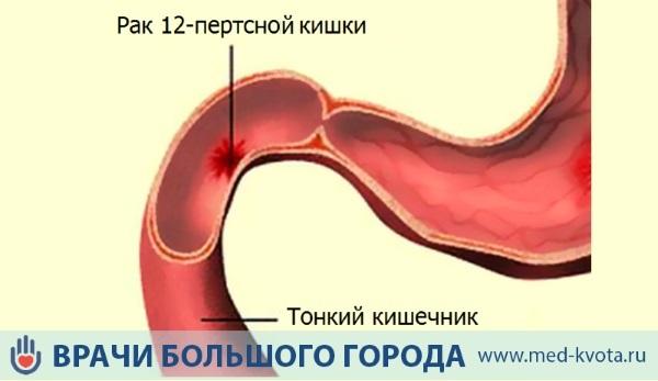 Рак двенадцатиперстной кишки: причины, симптомы и диагностика. Лечение рака двенадцатиперстной кишки в Москве