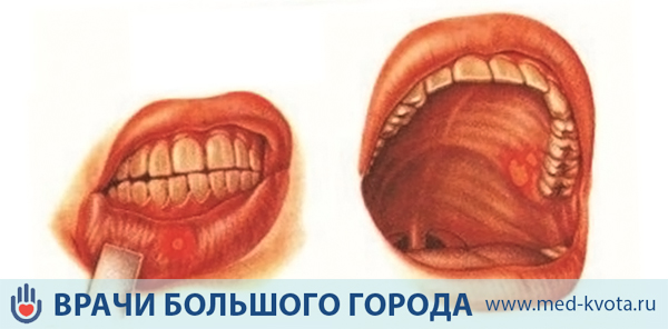 Рак слизистой оболочки полости рта: фото, первые симптомы и признаки, виды, причины, стадии, лечение, диагностика