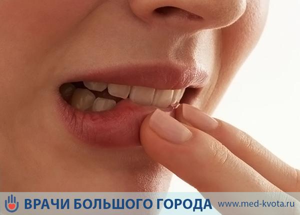 Рак слизистой оболочки полости рта, симптомы и признаки с фото