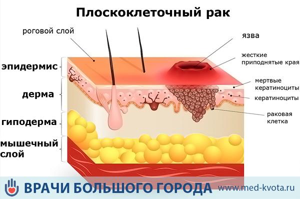 Лечение рака кожи в россии