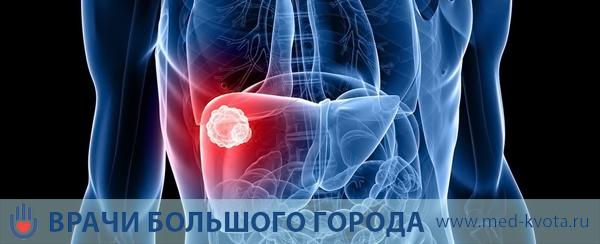 Лечение рака печени в Москве: клиники, стоимость и цены, отзывы