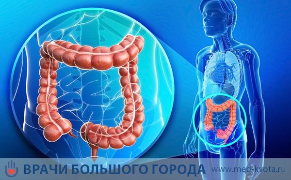 Москва лечение рака прямой кишки