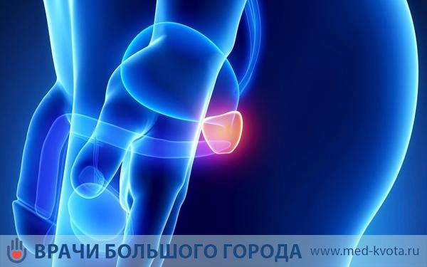 Лечение рака простаты в Москве
