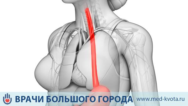 Лечение рака и онкологии бесплатно по квоте в москве.