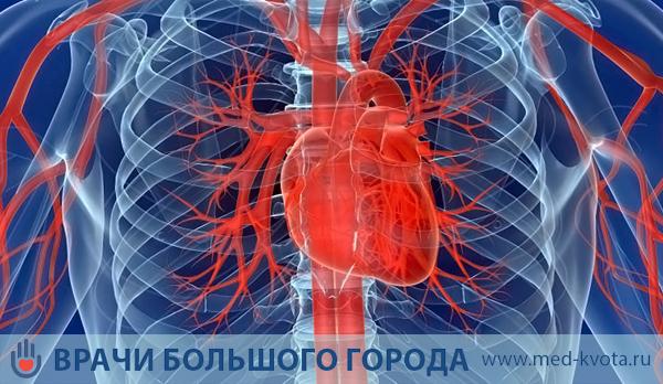 Миксома сердца операция стоимость