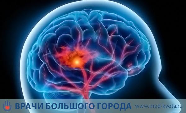 Химиотерапия при раке головного мозга: стоимость, последствия, цена, виды