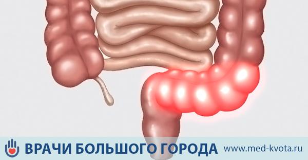 Рак сигмовидной кишки, симптомы, лечение и прогноз