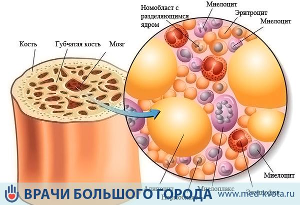 Инфекция в костном мозге
