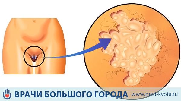 Рак вульвы прогноз 32