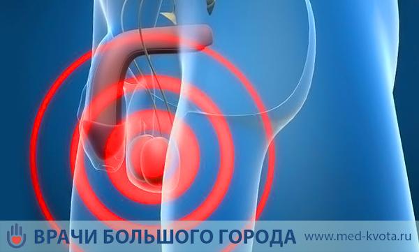 Лечение рака яичка - симптомы, методы лечения