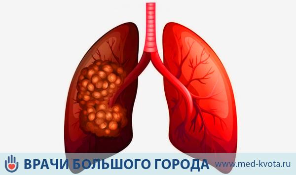 Лучевая терапия при раке легких: стоимость, противопоказания, цена в Москве