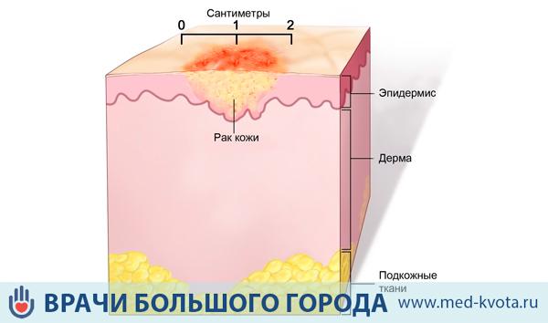 Лучевая терапия при раке кожи на лице последствия — АНТИ-РАК