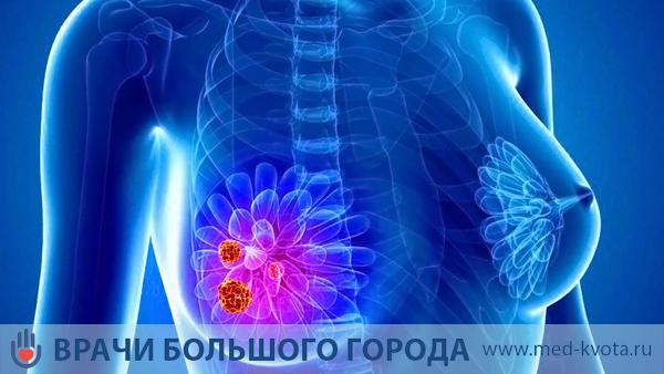Лучевая терапия при маммологии
