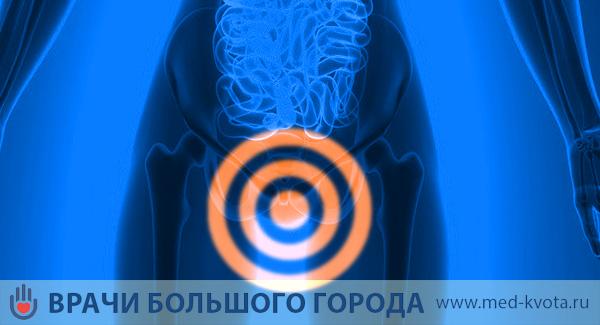 Рак вульвы прогноз 8