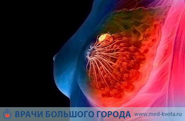 Лечение рака Педжета в Израиле