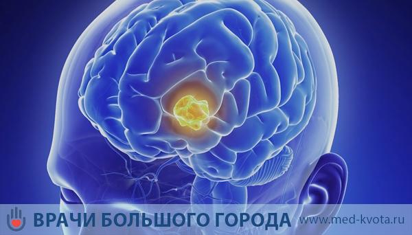 Лечение аденомы гипофиза в Москве (причины, симптомы, диагностика) — MedCentr.Online
