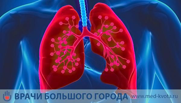 Кибер нож при раке легких в Москве: цена операции и стоимость лечения