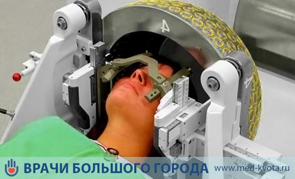 Стоимость лучевой терапии  при меланоме глаза