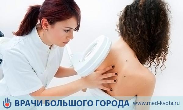 Меланома кожи, симптомы и признаки с фото