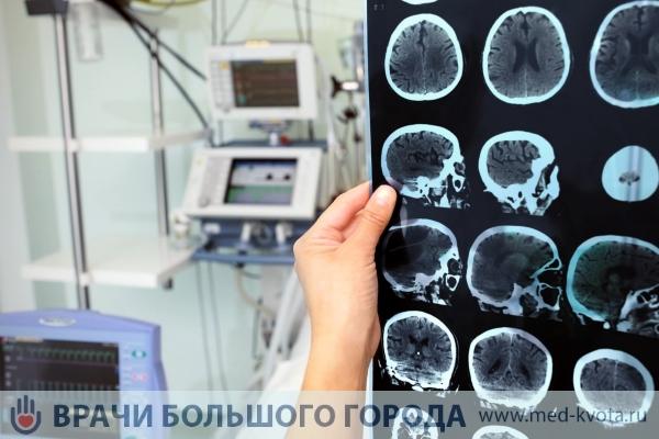 Химиотерапия при раке головного мозга — ooncologiya