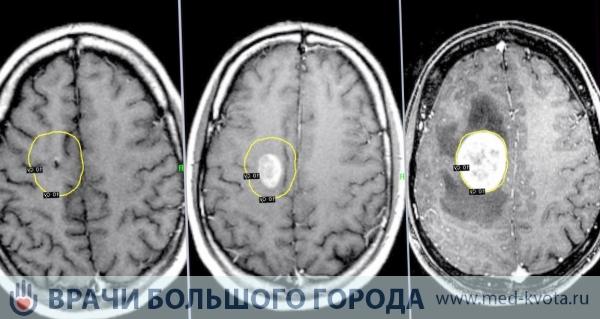 Химиотерапия при глиобластоме: стоимость и цены в Москве