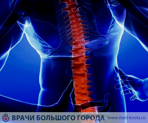 Астроцитома спинного мозга