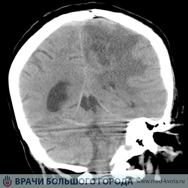 Пилоидная астроцитома головного мозга