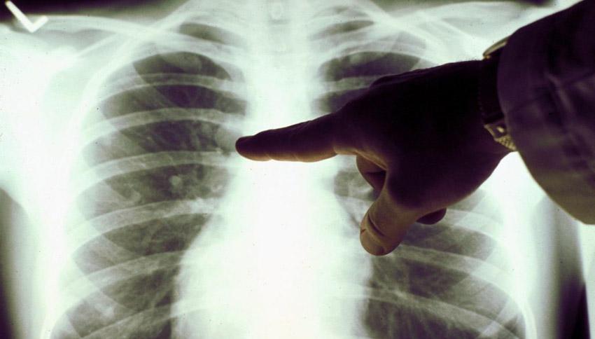 Онкодиспансер по лечению рака легких