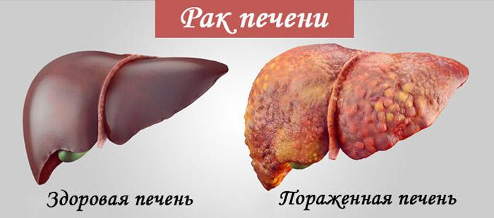 Лечение рака печени в москве