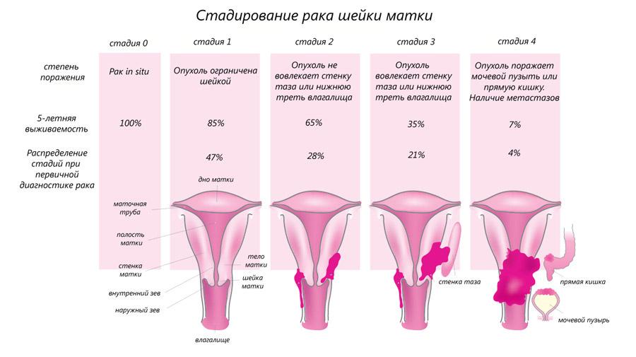 Как проявляется рак шейки матки симптомы